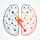 What to Know about Stroke